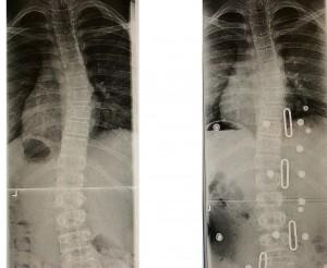 Comparison Patient F